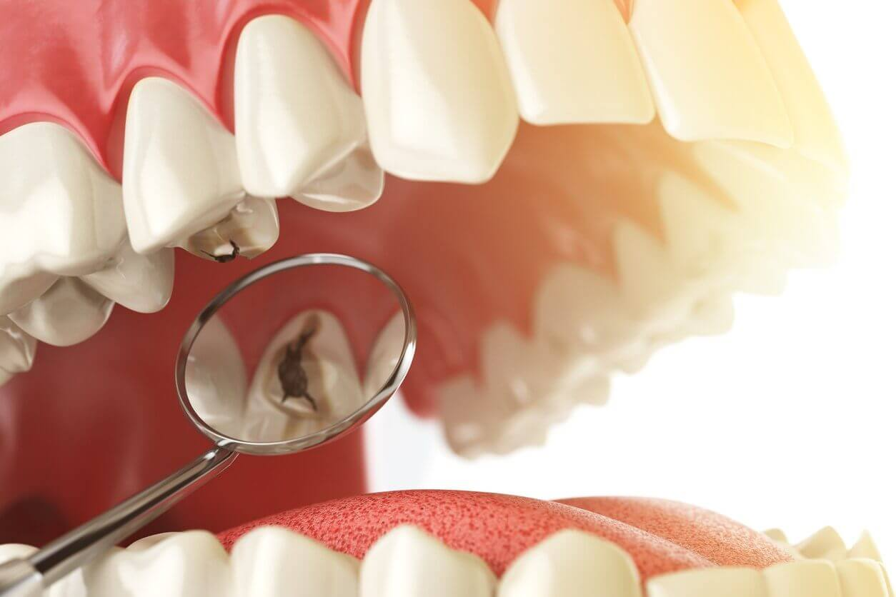 What is the Difference Between a Dental Sealant and Filling?